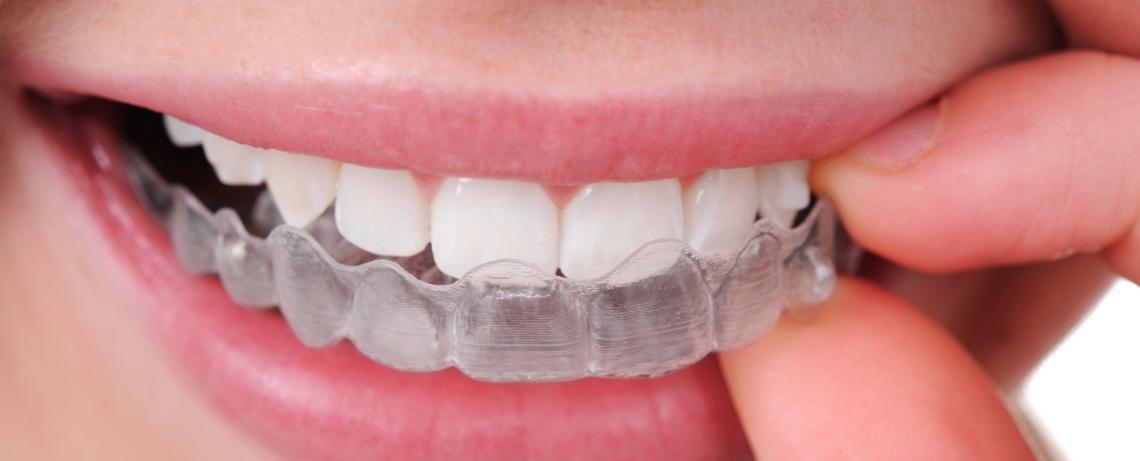 ortodonzia genova