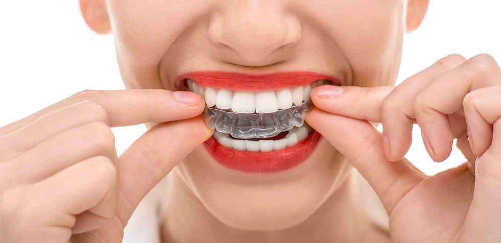 raddrizzare i denti storti