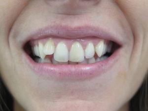 difetto dentatura